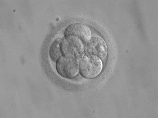 How Does IVF Work