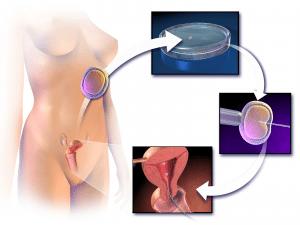 vaginal dryness symptoms